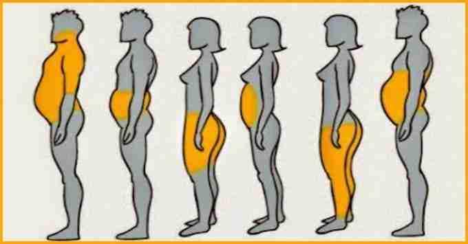 6-Types-of-Obesity